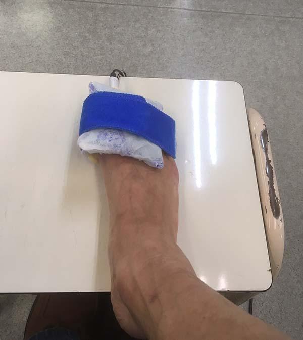 低周波治療中の足の親指
