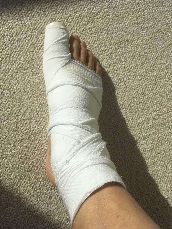 包帯を巻いた右足