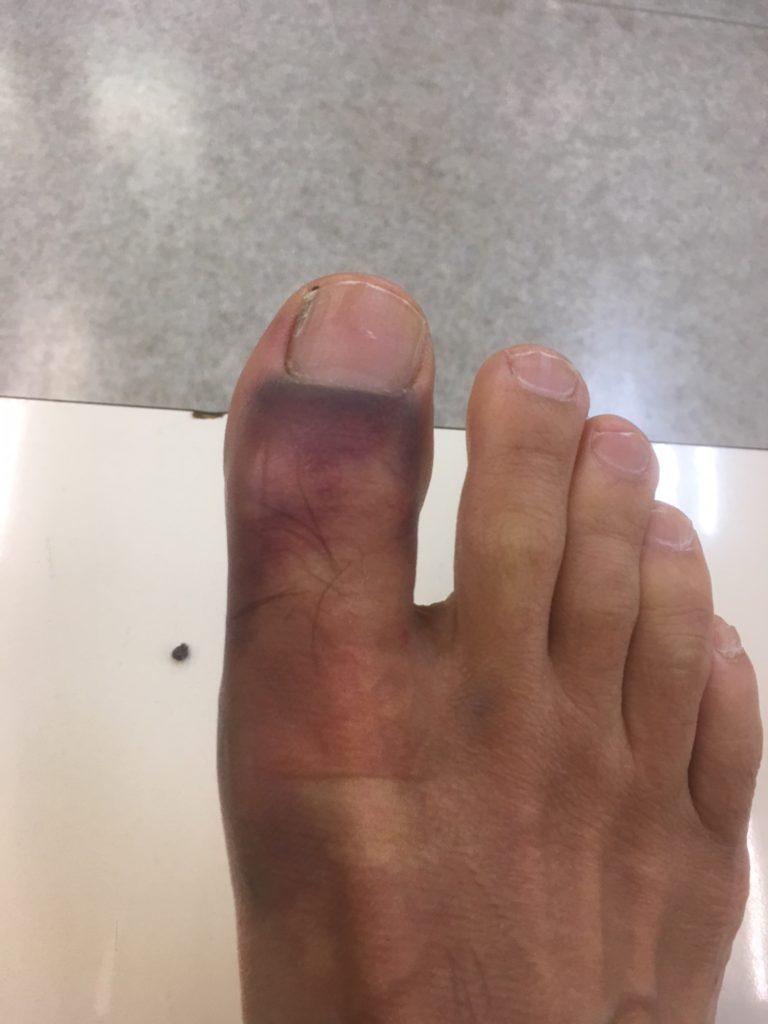 骨折した親指