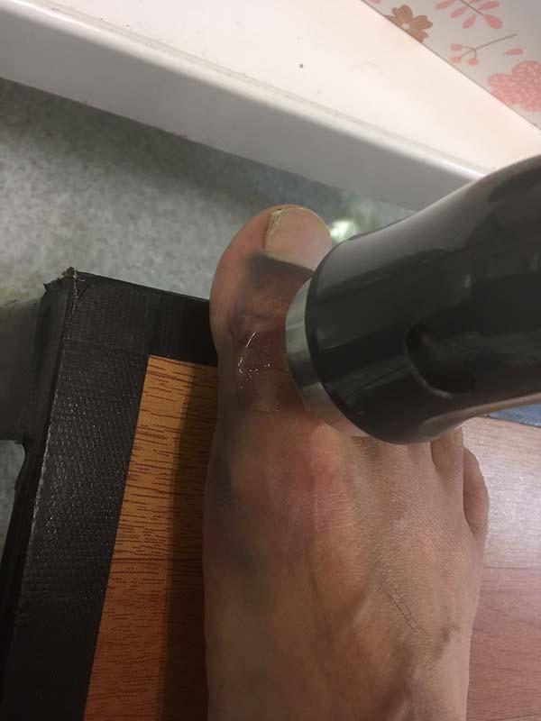 超音波治療中の足の親指