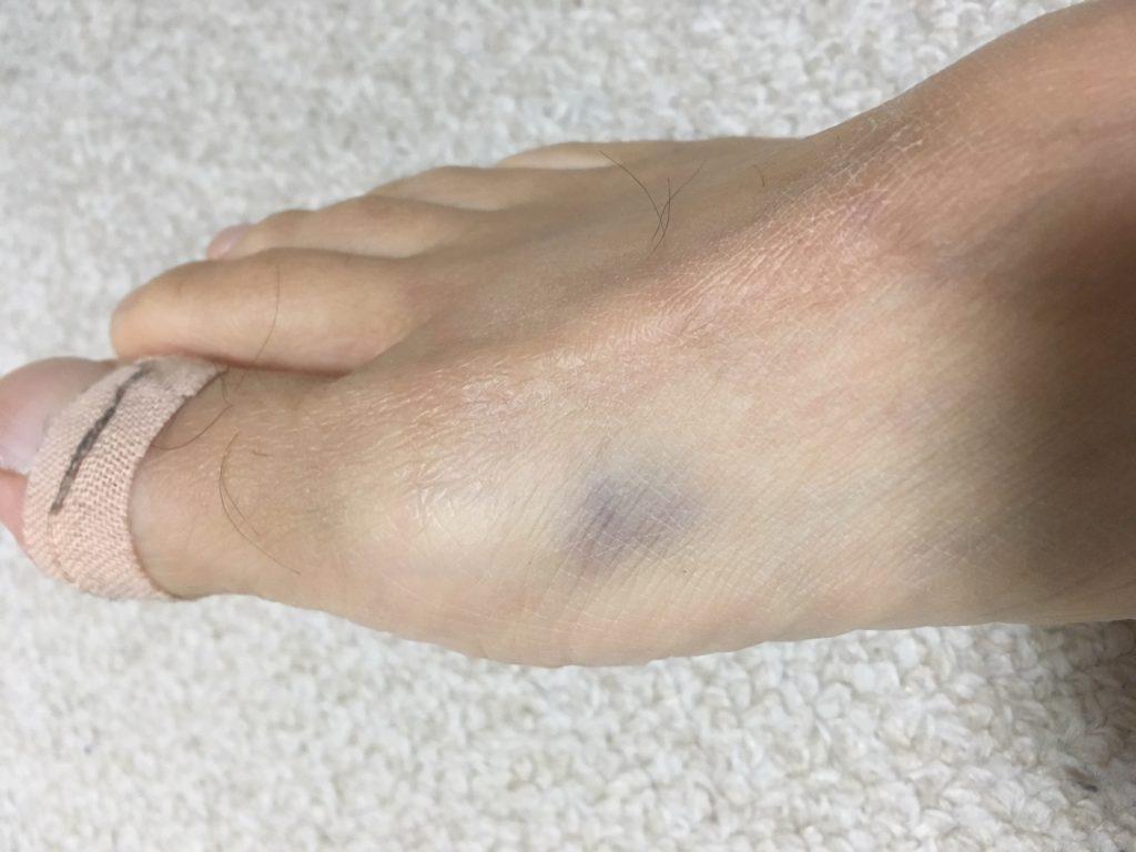 内出血がまだ残っている足