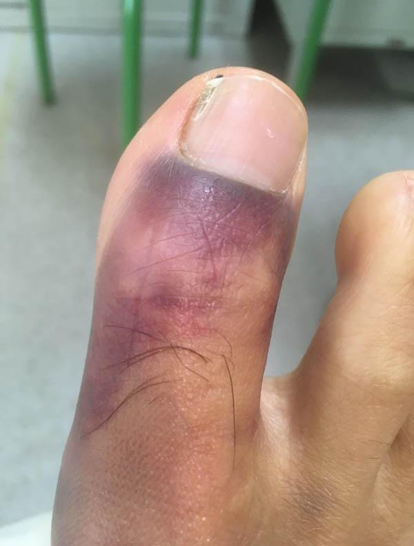 骨折した足の親指のアップ