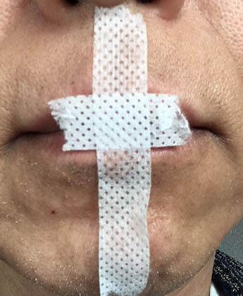 口に貼ったテープ
