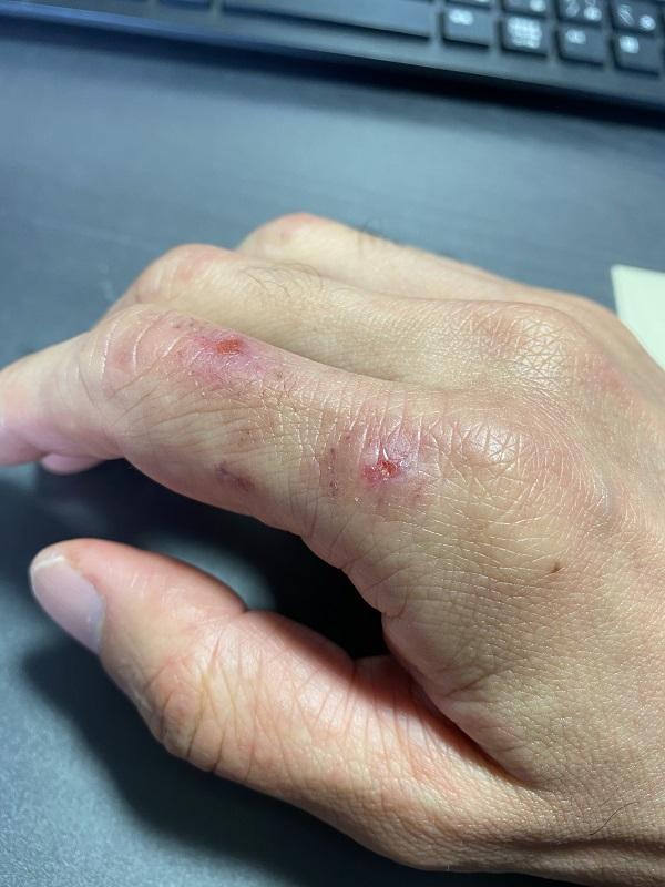 手湿疹になってあかぎれがひどい右手