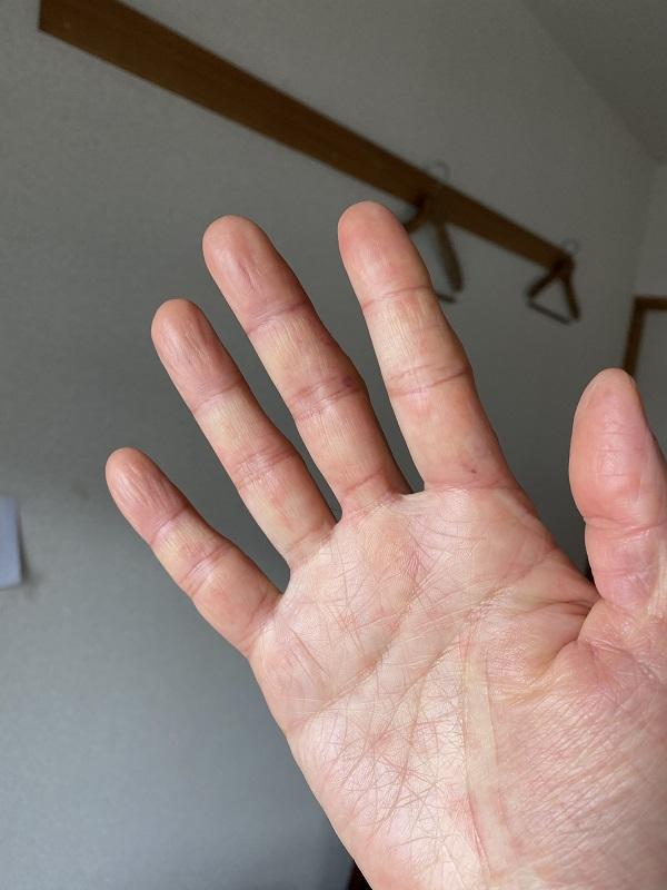 赤いブツブツができてチクチク痛む右の手のひら