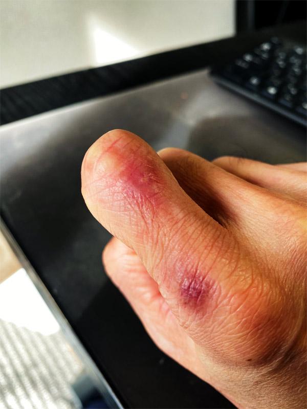治療18日目の右手の人差し指の湿疹